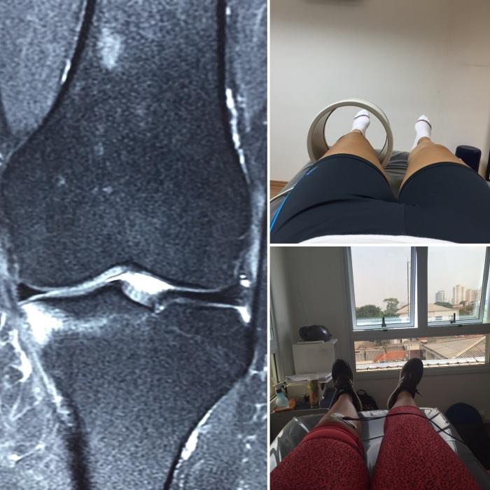 Lesão e as sessões de fisio